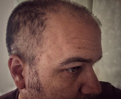 Photograph: Time to shave the head again.