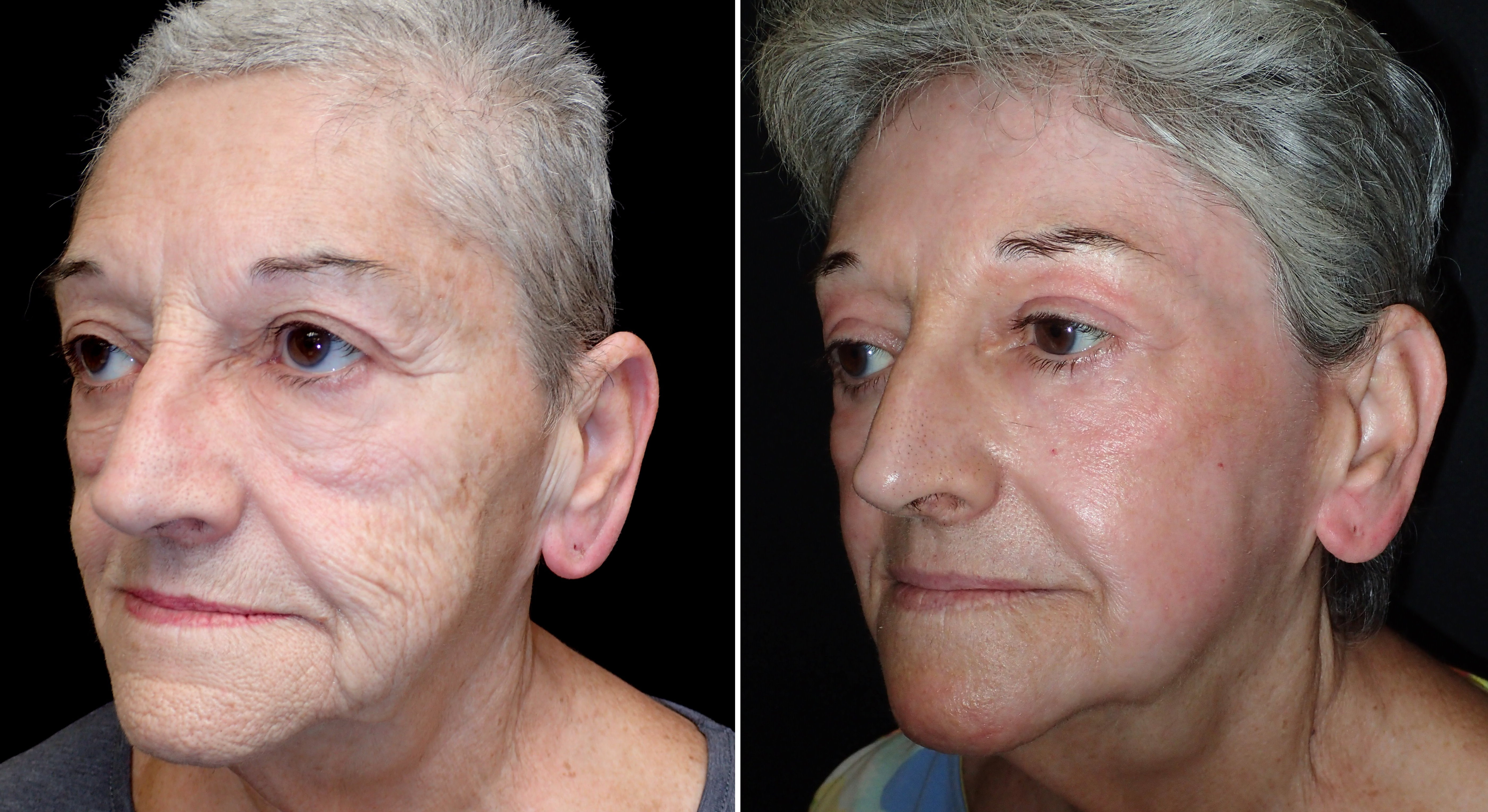 Facial resurfacing before and after