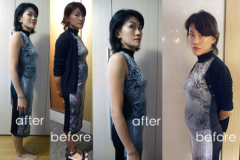 Before – I had that disgusting no-waist, can't-tell-whether-she's-pregnant-or-not figure. After – I've more of a waist and the lower abdomen is obviously flatter.